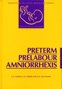 Preterm Prelabour Amniorrhexis