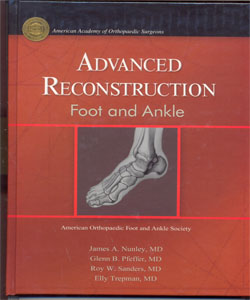 Advanced Reconstruction Foot & Ankle