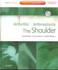 Arthritis and Arthroplasty: The Shoulder